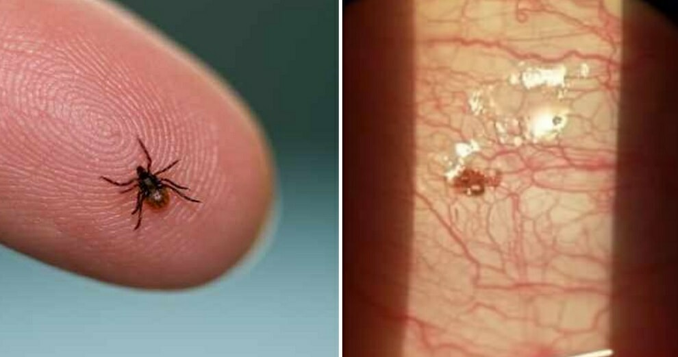 Electrical Worker Who Always Uses Insect Repellent Finds A Tick Inside His Cornea - WORLD OF BUZZ 3