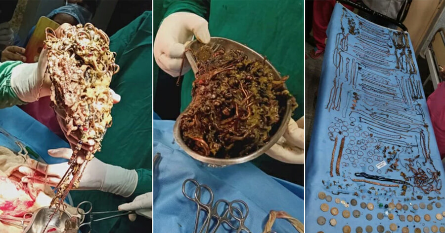 Doctors Shocked to Find - WORLD OF BUZZ