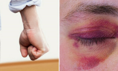 Jealous M'sian Wife Beaten, Slapped and Chased Out of Home by Husband Who Looked at Other Women - WORLD OF BUZZ