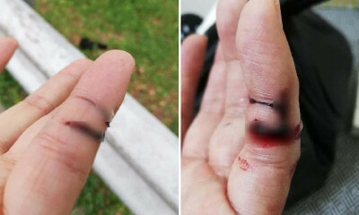 Malaysian Biker Warns Others After His Fingers Got Sliced By String Tied Around Flyover at DUKE Highway - WORLD OF BUZZ 3