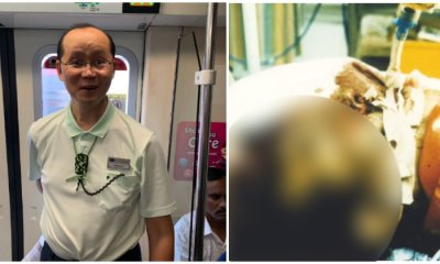 Meet Takalah Tan, The Singaporean Man With Only Half a Brain But The Positivity & Determination Of Two Men - WORLD OF BUZZ 2