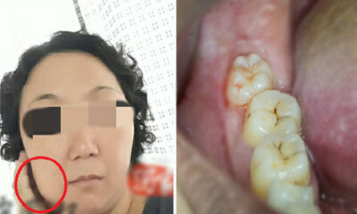 M'sian Mother Of 2 Throws Up Black Liquid, Passes Away 5 Days After Wisdom Tooth Extraction - WORLD OF BUZZ 1