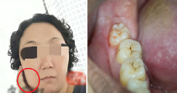 m'sian mother of 2 throws up black liquid passes away 5 days after wisdom tooth extraction