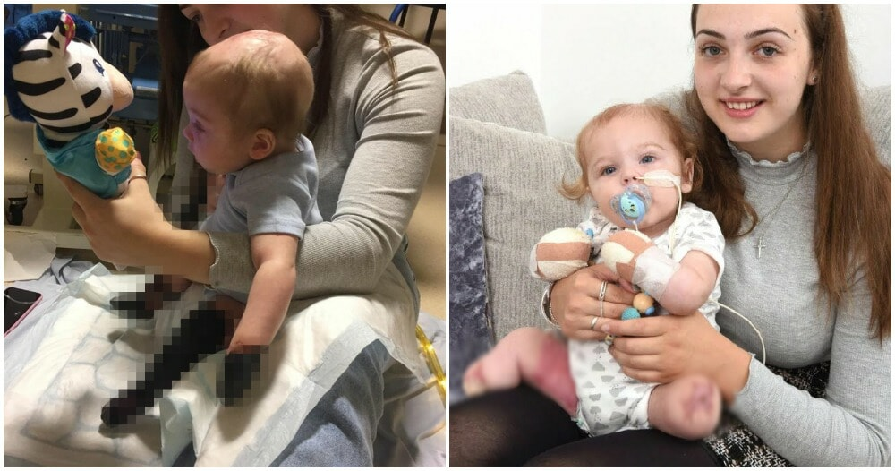 11-Month-Old Develops Sepsis From Throat Infection, All Limbs Amputated - WORLD OF BUZZ