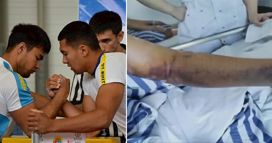 21yo College Student Fractures Arm & Loses Control of It After Arm-Wrestling With Friend - WORLD OF BUZZ 1