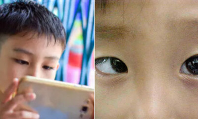 9Yo Boy Becomes Cross-Eyed After Playing Mobile Games For 10 Hours Every Day During School Holiday - World Of Buzz