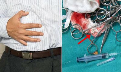 Man Finds Medical Gauze in Small Intestines After Appendicitis Surgery but Doctor Blames Him for Eating It - WORLD OF BUZZ