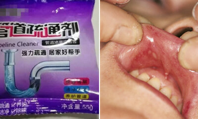 2Yo Boy Eats Pipe Cleaning Powder So Mum Flushes Mouth With Water But Burns Him Instead - World Of Buzz