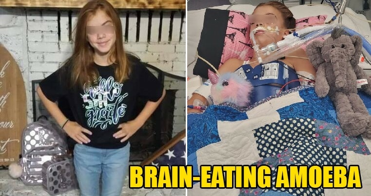 10yo Girl Dies From Brain Infection After Amoeba Enters Nose While Swimming in River - WORLD OF BUZZ 4
