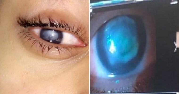 20yo Student Wears Contact Lens While Swimming in The Sea, Goes Blind After Getting Eye Infection - WORLD OF BUZZ 4