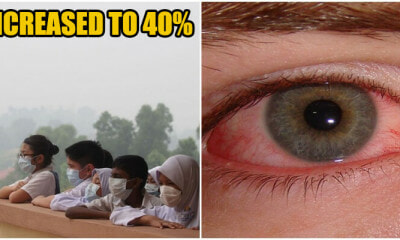 """40% Of Malaysians Are Sick Because of Haze!"" Said MOH - WORLD OF BUZZ 1"