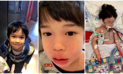 4yo Boy Only Had Pain in Leg But Was Later Diagnosed With Sepsis & Deadly Flesh-Eating Disease - WORLD OF BUZZ 1