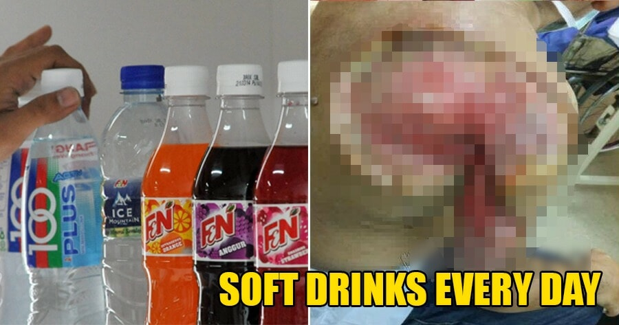 56yo M'sian Man Drank Soft Drinks Every Day, Gets Blistering Skin Infection & Almost Loses His Arm - WORLD OF BUZZ