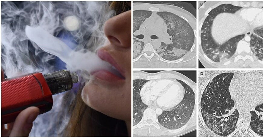 5 Dead From Vape-Related Illnesses, 450 Cases Reported; Experts Caution Against Using E-Cigarettes - WORLD OF BUZZ