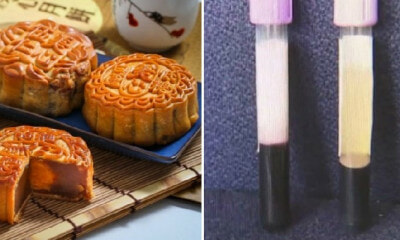 Man with Kidney Problems Ate 4 Mooncakes Almost Every Day Until His Blood Turned Milky White - WORLD OF BUZZ 2