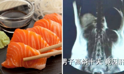 Man's Liver Gets Infected with Parasitic Worms After He Ate Raw Seafood for 3 Years - WORLD OF BUZZ 2
