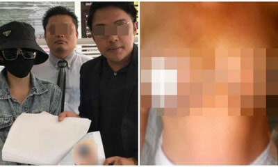 Woman Pays RM9,590 For Breast Surgery That Made Her Lose Her Nipples - WORLD OF BUZZ