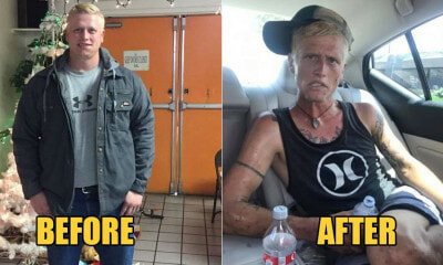 26yo Man Goes From Looking Fit To Sickly & Haggard Within 7 Months Because Of Drug Addiction - WORLD OF BUZZ