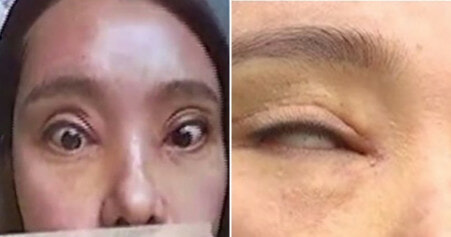 Woman Can't Close Her Eyes Fully After Getting Double Eyelid Surgery Twice - WORLD OF BUZZ