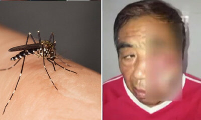 Man Suffers From Life-Threatening Infection After Scratching Mosquito Bite On His Face - WORLD OF BUZZ 3