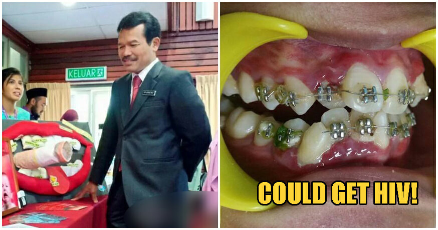 MOH: Using Fake Braces Puts You At Risk of Contracting HIV & Other Diseases - WORLD OF BUZZ