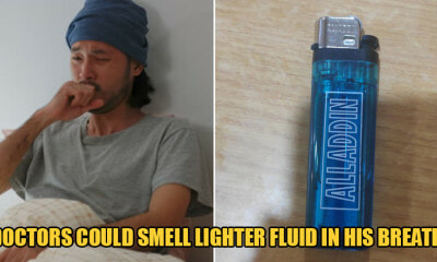 25yo Man Swallows Cigarette Lighter Which Leaks Fluid Into & Damages Stomach Lining - WORLD OF BUZZ
