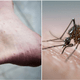 Dengue Can Now Be Transmitted Through Sex, First Case Confirm In Spain - WORLD OF BUZZ 2