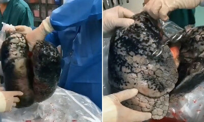 Images of Man's Lungs Heavily Blackened By 30 Years of Smoking One Pack A Day Go Viral - WORLD OF BUZZ 1