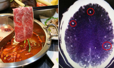Man Get Parasitic Brain Infection From Undercooked Meat As the Redness of Mala - WORLD OF BUZZ