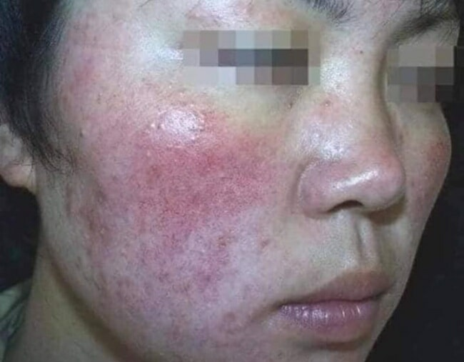 M'sian Lady Warns About Buying Fake & Cheap Skincare Products Online As It Can Ruin Your Face - WORLD OF BUZZ 2