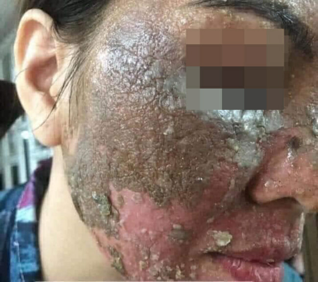 M'sian Lady Warns About Buying Fake & Cheap Skincare Products Online As It Can Ruin Your Face - WORLD OF BUZZ 3