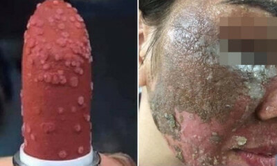 M'sian Lady Warns About Buying Fake & Cheap Skincare Products Online As It Can Ruin Your Face - WORLD OF BUZZ 6