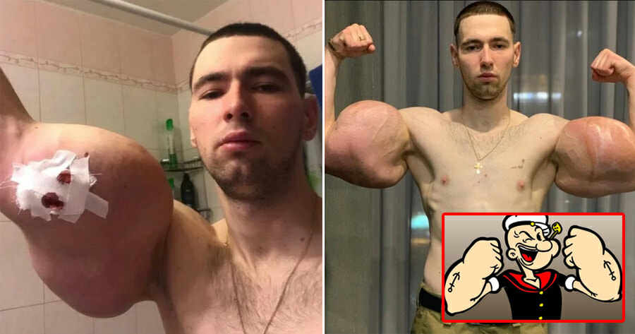 23Yo Injects 3 Litres Of Petroleum Jelly Into Muscles To Bulk Up Biceps & Triceps Like Popeye The Sailor Man - World Of Buzz