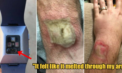 Man Shares How His Fitbit Watch Gave Him Third-Degree Burns When the Battery Overheated - WORLD OF BUZZ