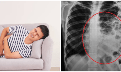 Man Undergoes Surgery After Playful Slap From GF Causes Intestines To Move Into Chest - WORLD OF BUZZ