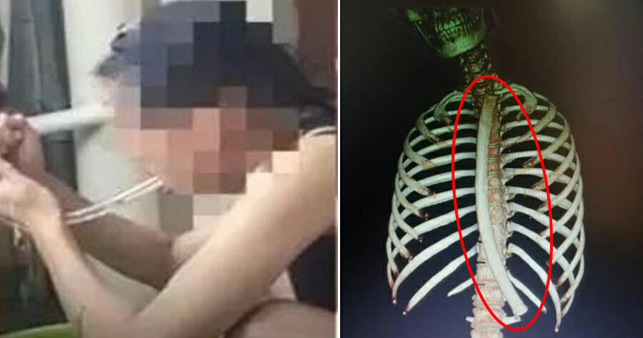 22yo Woman Accidentally Swallows 30cm Long Tube After Using it To Make Herself Vomit to Lose Weight - WORLD OF BUZZ