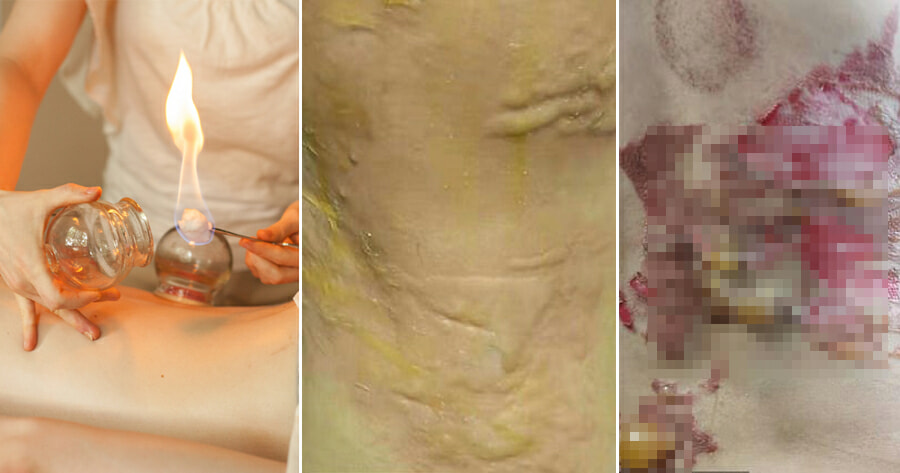 34yo Woman's Skin Catches Fire After Fire Cupping Session, Suffers Second-Degree Burns - WORLD OF BUZZ