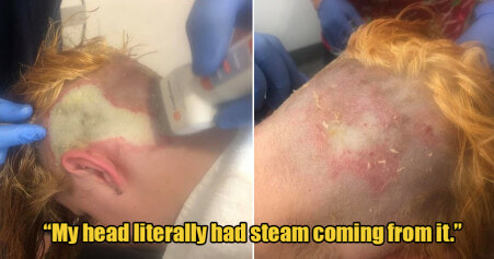 20yo Woman Suffered Third Degree Chemical Burns After Bleaching Her Own Hair to Save Money - WORLD OF BUZZ