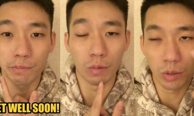 M'sian Badminton Player Chan Peng Soon Suffers From Bell Palsy, Half of His Face Is Paralysed - WORLD OF BUZZ 2
