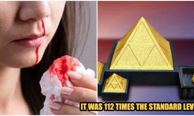 "Woman Has Nosebleeds Due To Radiation Poisoning From ""Energy Stone"" G - WORLD OF BUZZ"