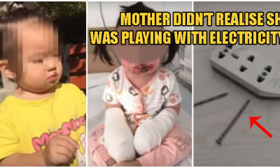 2yo Girl Suffers 4th Degree Burns After Negligent Mother Didn't Notice Her Playing With Electric Sockets - WORLD OF BUZZ 3