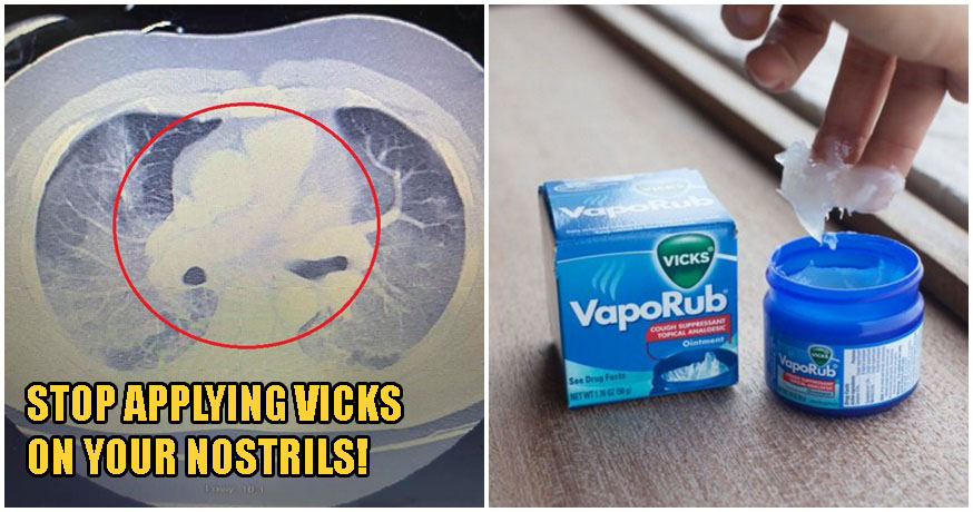 Applying Vicks On Your Nostrils Can Lead To Respiratory Complications, Says Doctor - WORLD OF BUZZ 3