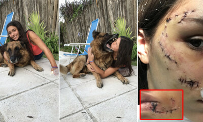 17yo Girl Suffers 40 Stitches on Face & Gums After Dog Attacked Her While Taking a Photo - WORLD OF BUZZ