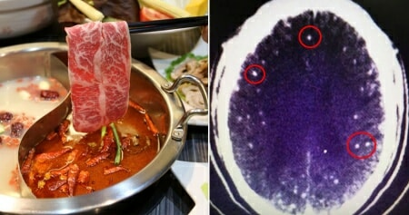 Woman Feels Pain in Her Throat & Chest After Having Hotpot, Coughs Up Blood The Next Day - WORLD OF BUZZ 2