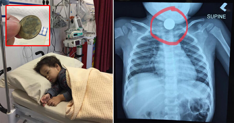 M'sian Mum Shares How She Had to Wait Almost 24hrs Before a 20sen Coin in Son's Throat Was Removed - WORLD OF BUZZ
