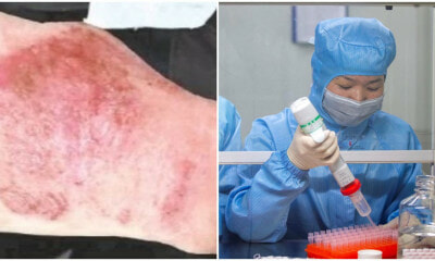 Doctors Hands Turn Red & Swollen From Working On Wuhan Cure For 12 Hours In Lab Everyday - WORLD OF BUZZ 3