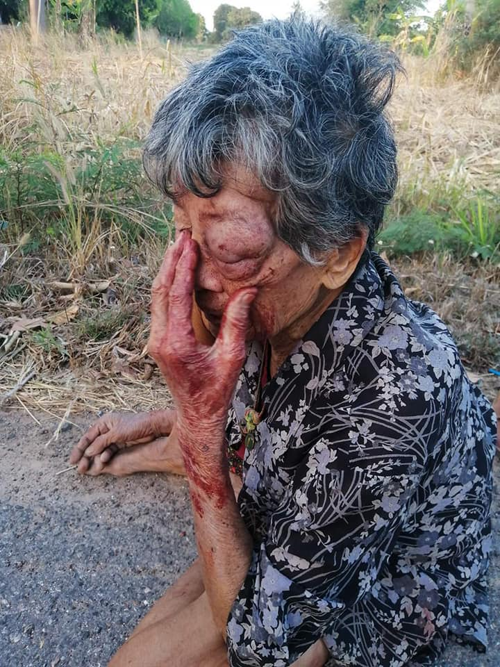 Drunk Grandson Violently Abuses His Grandmother, Forcing Her To Run From Home & Sleep On Streets - WORLD OF BUZZ 2