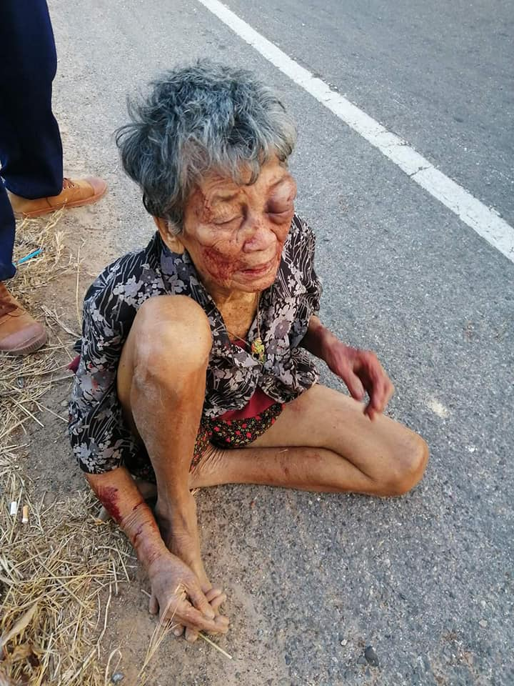 Drunk Grandson Violently Abuses His Grandmother, Forcing Her To Run From Home & Sleep On Streets - WORLD OF BUZZ