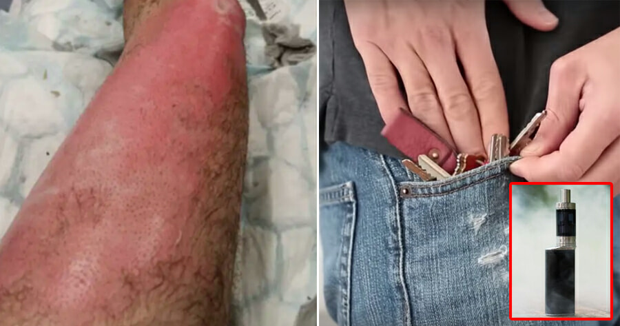 37yo Man Gets Third-Degree Burns After His Vape Rubbed Against Metal Keys In Pocket & Exploded After It Rubbed Against Metal Keys in His Pocket, - WORLD OF BUZZ