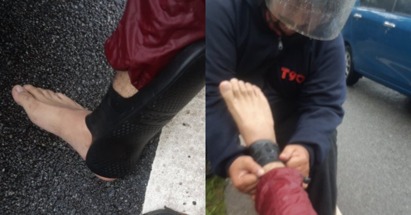 Motorcyclist Shares His Story Of Getting Into An Accident, Wonders How His Slipper Turned Into An Anklet - WORLD OF BUZZ 4